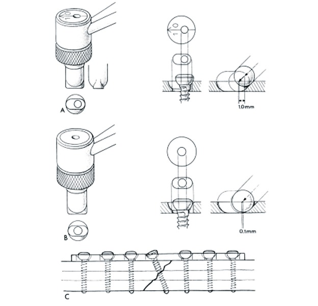 Dynamic Compression Plate Application